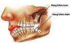 Biến chứng răng khôn có nguy hiểm không?
