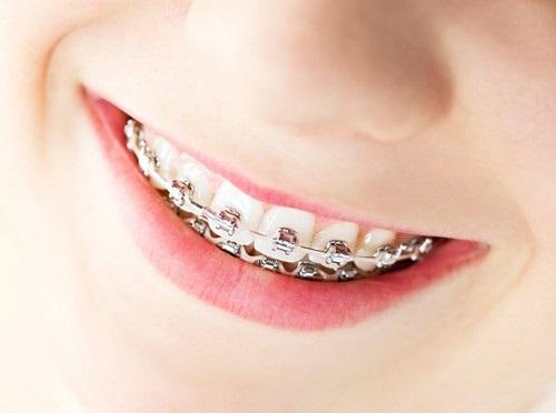 Chỉnh răng không phải việc dễ dàng