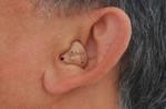 Thị trường máy trợ thính ngoài tầm quản lý giá, chất lượng