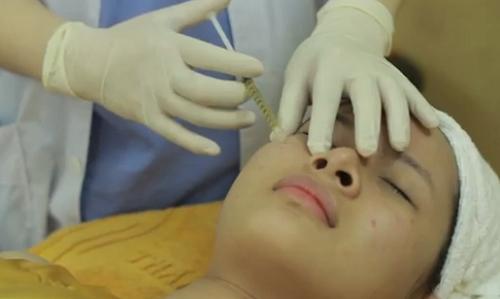 Công nghệ điều trị sẹo rỗ nhờ cấy da siêu vi điểm