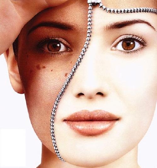 Hiểu về nguyên nhân gây nám da sẽ giúp bạn tìm ra phương pháp chăm sóc da bị nám