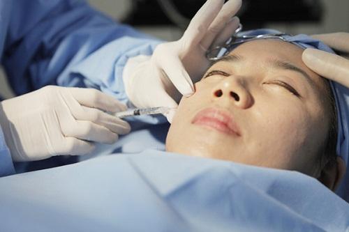 Điều trị sẹo rỗ bằng phương pháp cấy da siêu vi điểm tại thẩm mỹ Phương