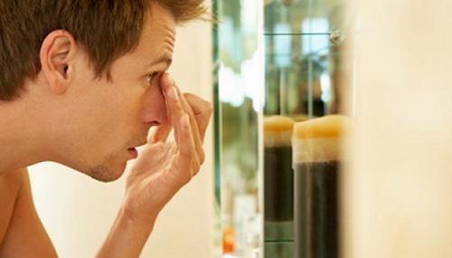 Làm sao để trị sẹo rỗ, sẹo lõm cho nam giới?