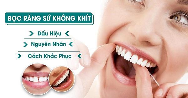 Quy trình bọc sứ 4 răng cửa nhanh chóng và hiệu quả.