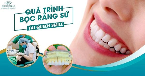 Tham khảo ngay quy trình bọc răng sứ.
