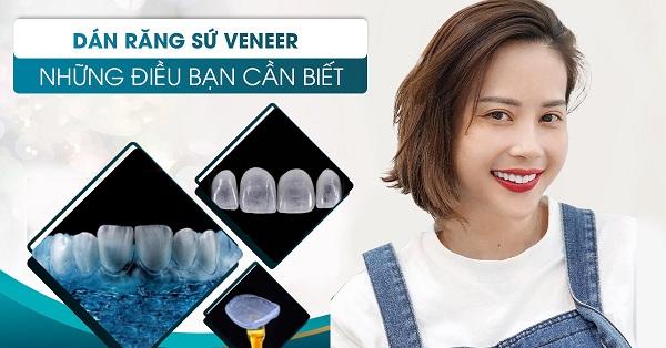 Nên lựa chọn phương pháp bọc răng sứ hay dán sứ Veneer.